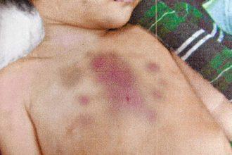 Bé gái 2 tuổi bị đánh tới chết vì quấy ...