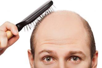 Bệnh hói đầu và cách chữa trị bệnh hói đầu ...