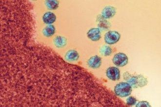 Bệnh HIV không còn là bệnh thế kỷ, mở ra ...