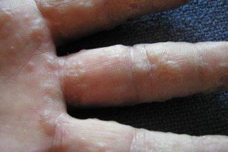 Bệnh tổ đỉa – Nguyên nhân, triệu chứng và cách ...