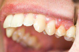 Chảy máu khi đánh răng, dấu hiệu bệnh gì? ...