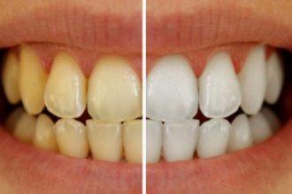 Chỉ mất 3 phút, bạn sẽ có hàm răng trắng ...