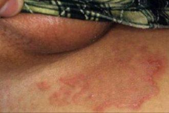 2 phương pháp chữa dứt bệnh viêm da tiết bã ...