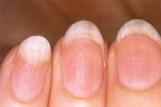 8 dấu hiệu này ở móng tay bạn tuyệt đối ...