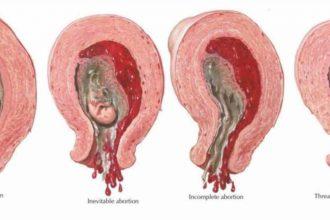 Mẹ bầu rất dễ sẩy thai trong 3 tháng đầu ...