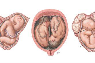 Nguy cơ thai nhi bị TỔN THƯƠNG NÃO ở thời ...
