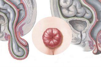 """""""Thần dược"""" chữa khỏi bệnh trĩ dù lòi ra ngoài, ..."""