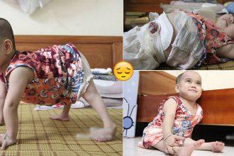 """Em bé bị ĐA DỊ TẬT BẨM SINH đi bằng """"4 chân"""", sống nhờ vào những chiếc bao cao su và băng vệ sinh"""