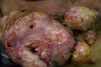 Căn bệnh ung thư phổ biến nhưng khó PHÁT HIỆN, ...