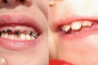 Thói quen SAI LẦM của cha mẹ khiến hàm răng ...