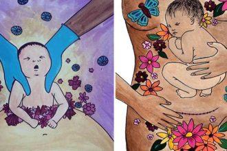 """Bộ ảnh """"vinh danh"""" những bà mẹ đẻ mổ lay ..."""